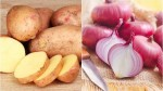 In Navratri Season The Prices Of Onions And Potatoes Went Up